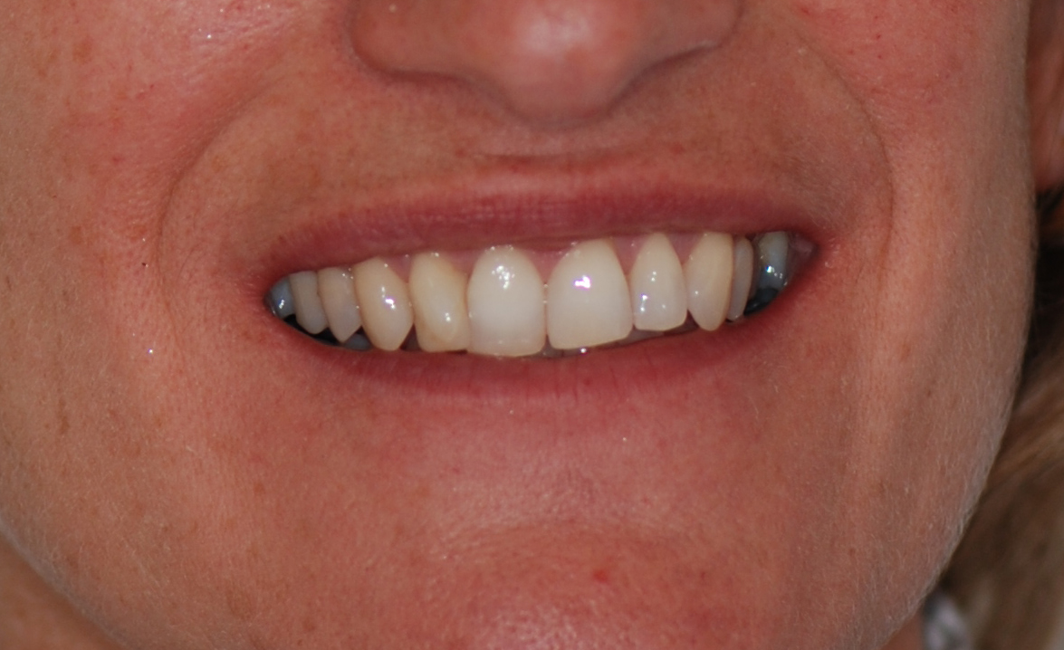 Invisible Braces Newcastle | Invisalign Newcastle ...