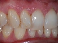 Treatment begins with Lingual Braces