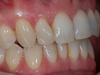 Teeth getting straighter with lingual braces